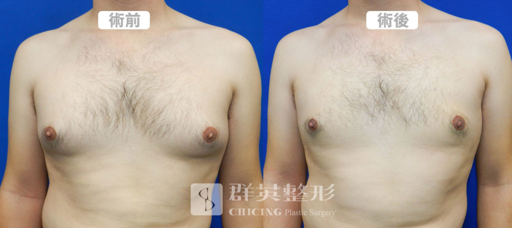 0519大正醫師男性女乳案例03-正面