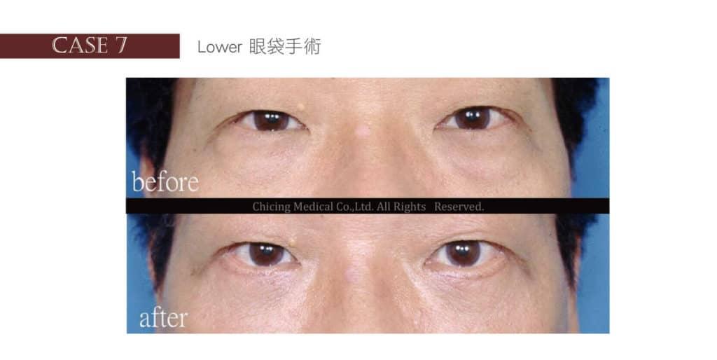 眼袋手術案例