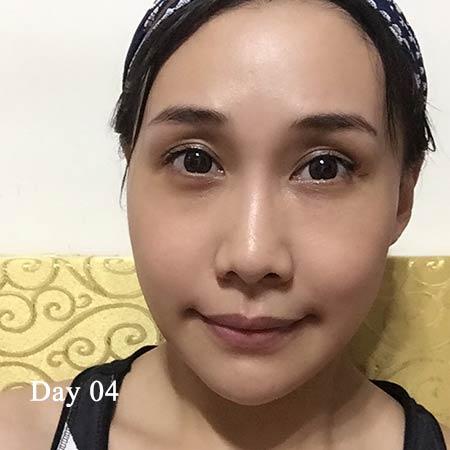 陳怡傑正顎術後第四天