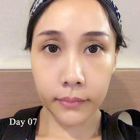 陳怡傑正顎術後第七天
