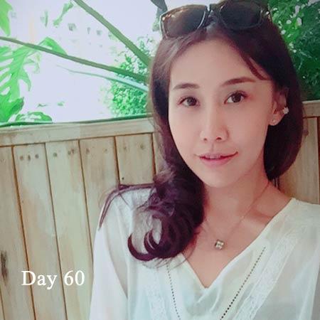 陳怡傑正顎術後第2個月