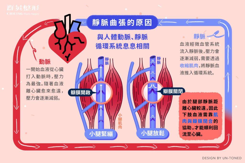 Varicose veins01