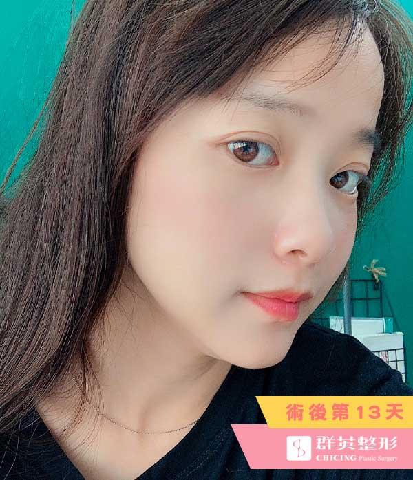 台北群英_陳怡傑醫師_正顎削骨75