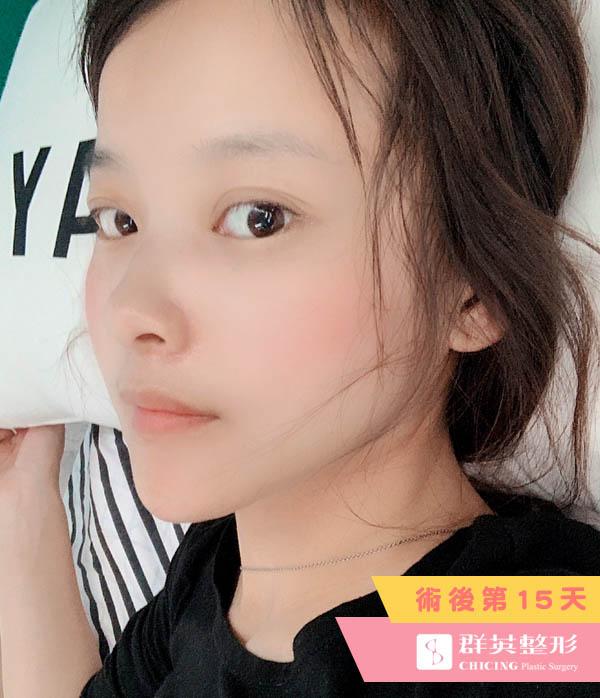 台北群英_陳怡傑醫師_正顎削骨69