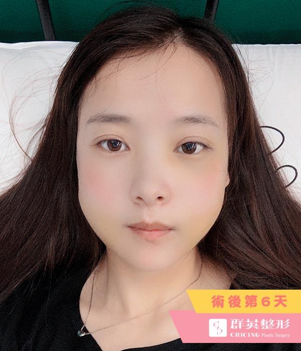 台北群英_陳怡傑醫師_正顎削骨97