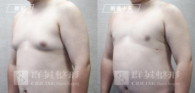 台中群英_林雍球醫師_男性女乳症05