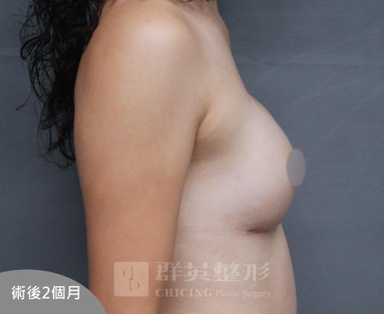 台北群英_黃馨慧醫師_魔滴隆乳45