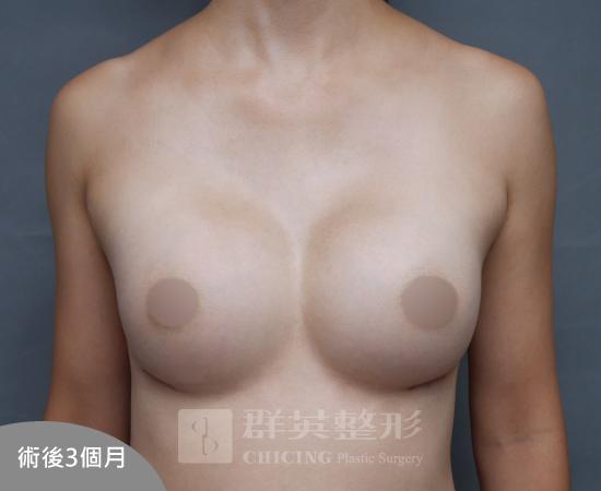 台北群英_黃馨慧醫師_魔滴隆乳38