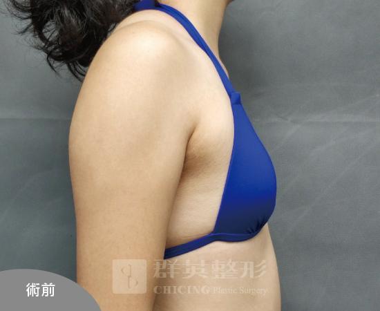 台北群英_黃馨慧醫師_魔滴隆乳09