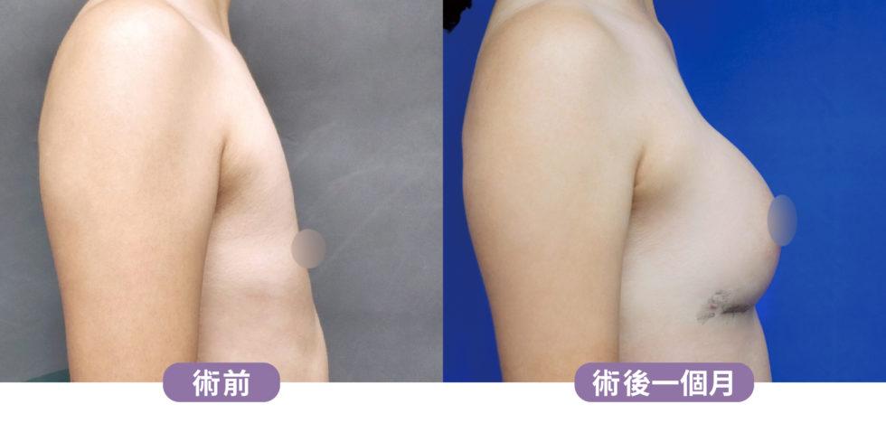 台北群英_黃馨慧醫師_魔滴隆乳20