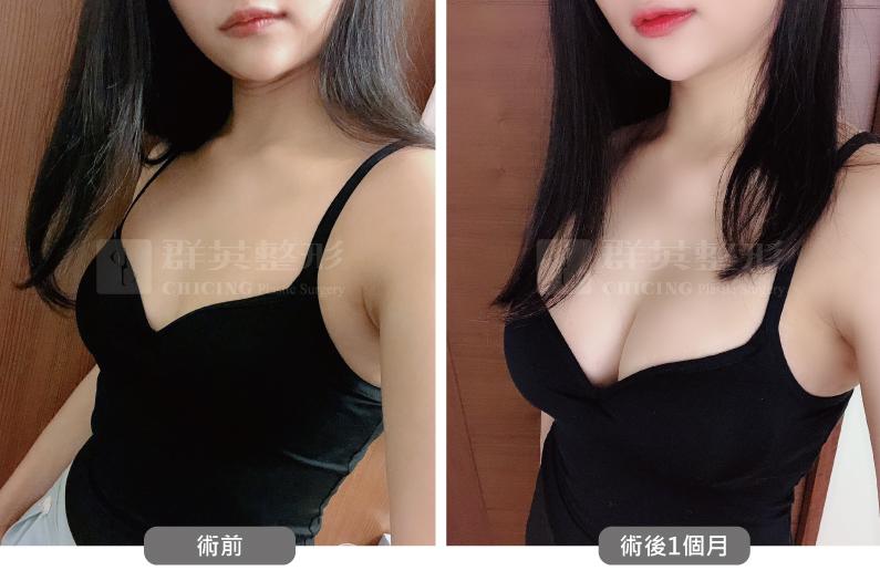 台北群英_黃志宏醫師_魔滴隆乳52