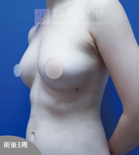 高雄抽脂豐胸_高雄群英_王冠穎醫師_11